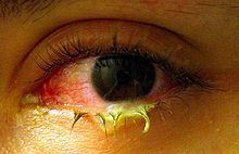 ini bukan mata saya,tetapi sign yang ditunjukkan lebih kurang seperti gambar ini